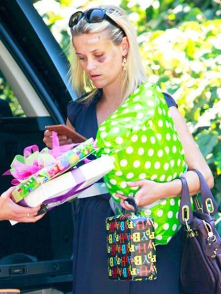 Reese Witherspoon từng có lần xuất hiện với một bên mắt tím bầm và vầng trán thương tật do bị xe đâm hồi năm 2011.