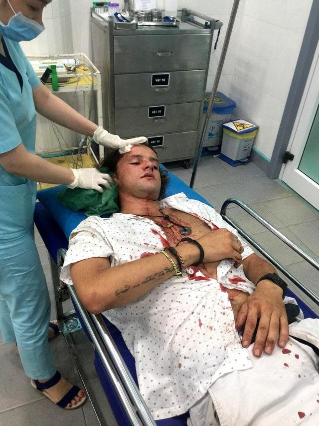 Anh Margan nhập viện khâu 11 mũi do bị đánh
