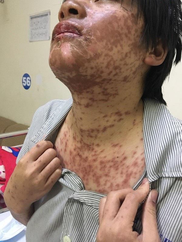 Toàn thân bệnh nhân đã bị nổi mẩn, mưng mủ do dị ứng thuốc