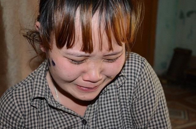 Người mẹ trẻ này bản thân mang bệnh viêm xoang nặng, đã có chỉ định phải mổ