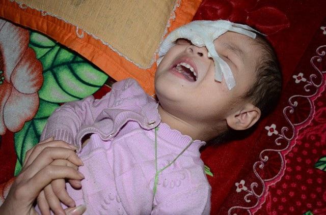 Để giữ tính mạng của bé, các bác sĩ đã phải múc bỏ 2 mắt.