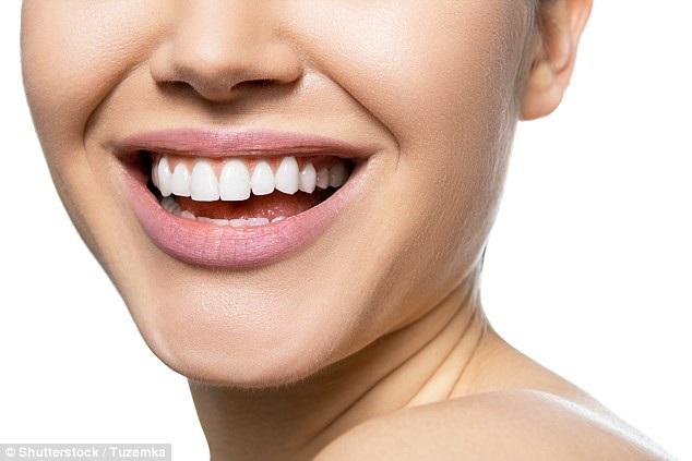 Gói dịch vụ chăm sóc răng trị giá 1380 USD