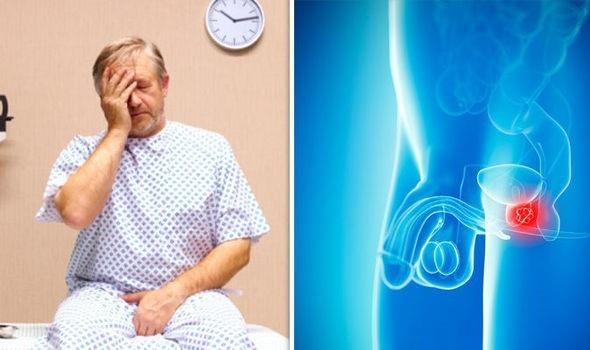Nghiên cứu mới có thể giúp bệnh nhân ung thư tuyến tiền liệt không phải điều trị mệt mỏi - 1