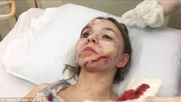 Tại thời điểm xảy ra vụ tai nạn, Hickson đang đóng một cảnh đòi hỏi cô phải áp mặt vào một khung cửa kính và đấm mạnh vào mặt kính bằng nắm tay. Nhưng chi tiết nằm ngoài kịch bản và mọi dự liệu của đoàn phim, đó là bất ngờ cả tấm kính cửa bị vỡ khiến nữ diễn viên bị thương ở phần đầu và thân trên.