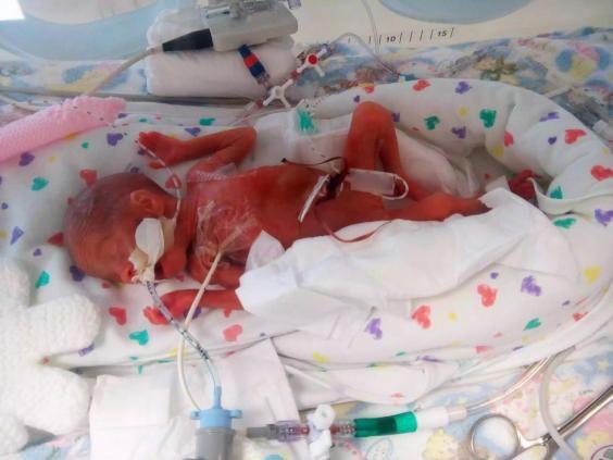 Ảnh bé sinh non đỏ hỏn, da mỏng đến nỗi nhìn thấy cả não gây bão mạng - 1