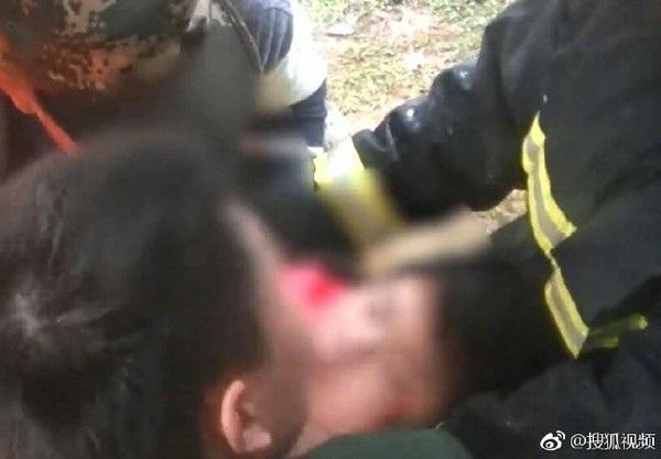 Cô bé sống sót may mắn với vết thương ở tai và không nguy hiểm đến tính mạng