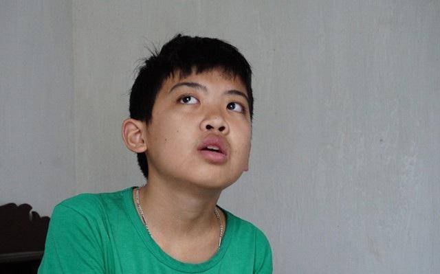 Trần Đình Quý mắc bệnh u nang rễ răng, đã trải qua 3 lần phẫu thuật bóc tách nang, nhổ 5 chiếc răng