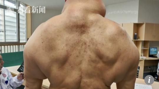 Phần vai lưng trông như những quái vật trong điện ảnh của người đàn ông Trung Quốc - ảnh: SCMP