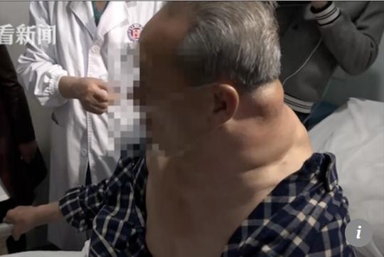 Ông Tan bắt đầu khó thở do những khối u - ảnh:SCMP