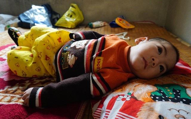 9 tháng tuổi, bé Thế chỉ có thể nằm ngửa, không thể lật hay ngồi...