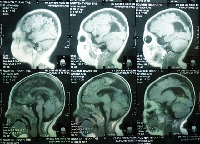 Kết quả chụp chiếu cho thấy bé bị teo não, giãn não thất.