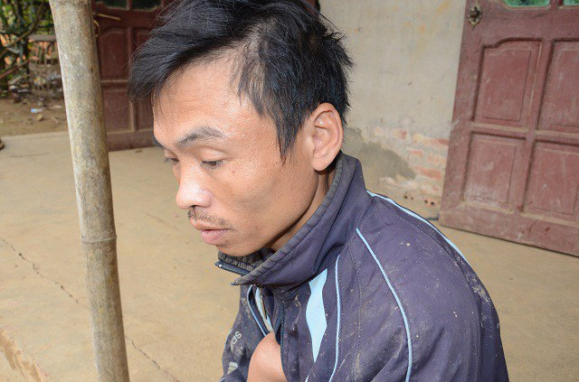 Anh Đặng Văn Điều (41 tuổi), bị dị tật bẩm sinh