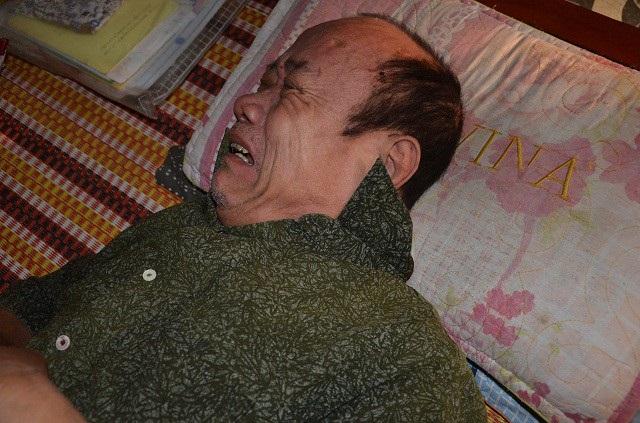 Ông Nguyễn Văn Thính ( 68 tuổi) bị tai biến
