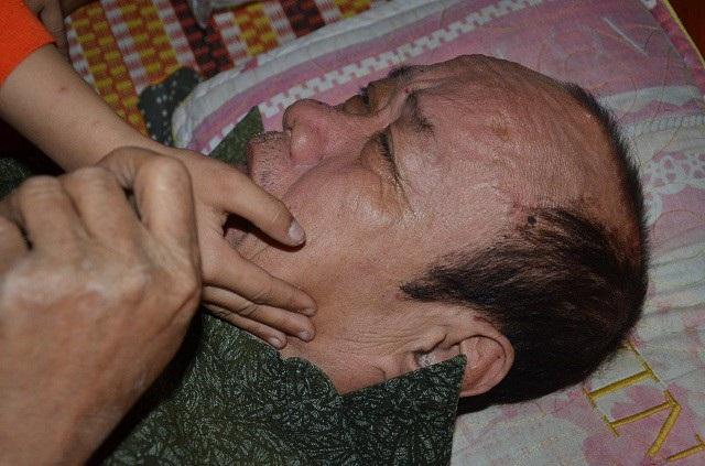 Do không được chữa trị thường xuyên, nên nửa người bên phải của ông đã bị liệt hoàn toàn.