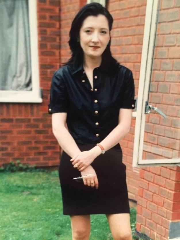 Rachel trước khi phẫu thuật thẩm mỹ