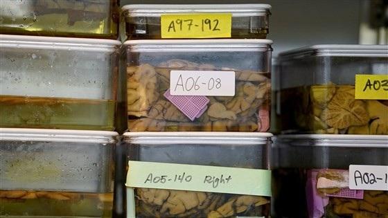 Ảnh chụp cắt lớp não người mà các nhà nghiên cứu tại Đại học Northwestern sử dụng để nghiên cứu bệnh Alzheimer.