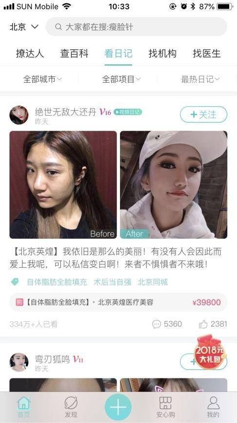 Một cô gái chia sẻ ảnh trước và sau khi phẫu thuật thẩm mỹ trên mạng xã hội So Young (Ảnh: SCMP)