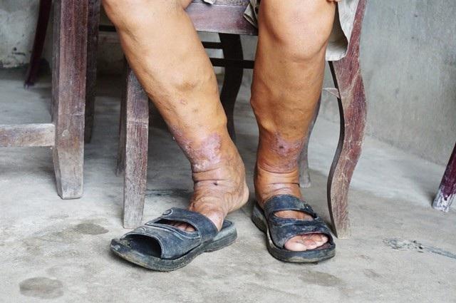 Đôi chân đầy những vết sẹo, vết thương chưa lành của anh Khanh