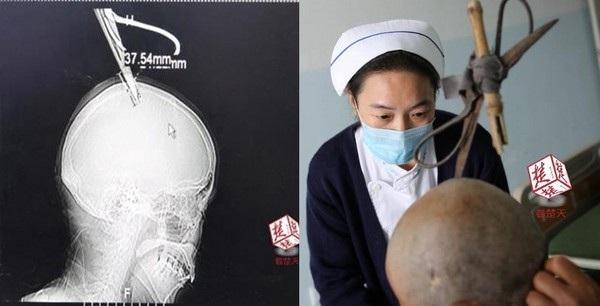 Cây kéo mắc kẹt trên đầu bà Trần và phim chụp X-quang cho thấy cây kéo suýt chạm vào não của bà