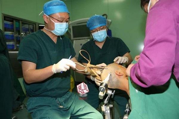 Các bác sĩ phẫu thuật để lấy cây kéo ra khỏi đầu bà Trần