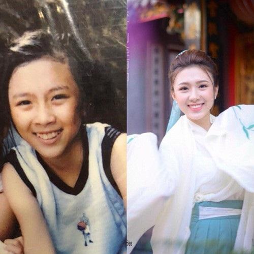 Khánh Linh trước và sau khi niềng răng.