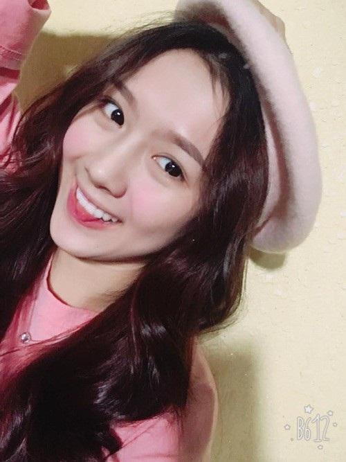 Hot girl Kiên Giang nổi đình nổi đám nhờ niềng răng suốt 4 năm - 9