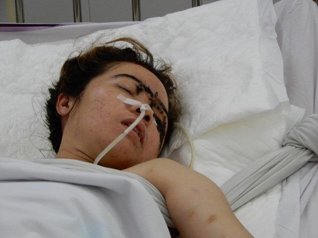 Bệnh nhân Võ Thị Mỹ Ngân đang nằm viện điều trị do đa chấn thương sau tai nạn giao thông