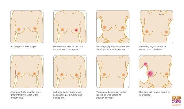 Sự thay đổi về hình dạng vú, núm vú có thể báo hiệu bệnh ung thư vú.