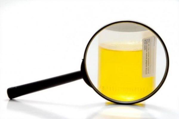 Máu trong nước tiểu có thể liên quan đến các điều kiện lành tính hoặc một số bệnh ung thư.