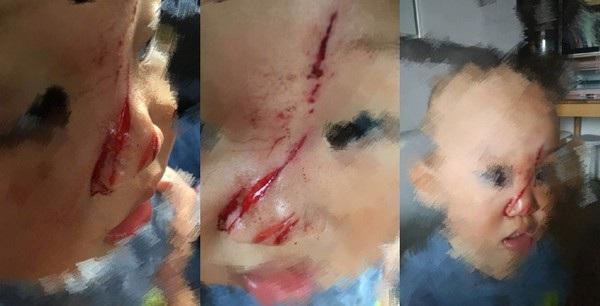 Gương mặt của em bé Chengcheng với vết thương nghiêm trọng sau khi bị cánh quạt của flycam cắt phải