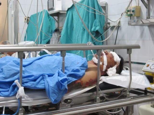 Tài xế xe ben đang được cấp cứu tại Bệnh viện Việt Đức