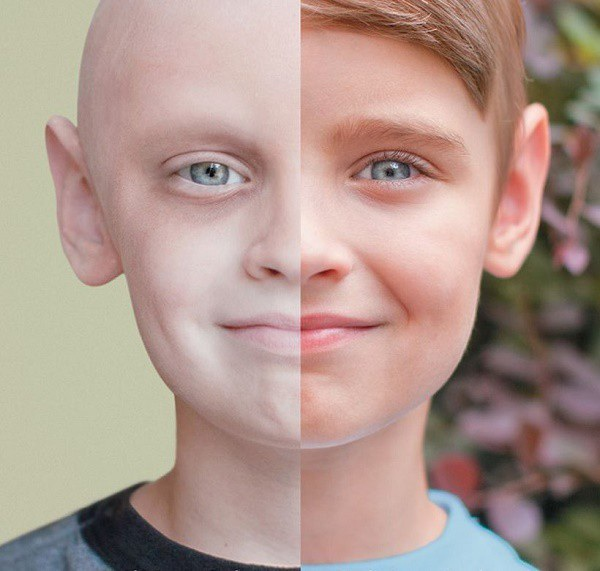 Trẻ bị ung thư máu thường có làn da nhợt nhạt, mệt mỏi.