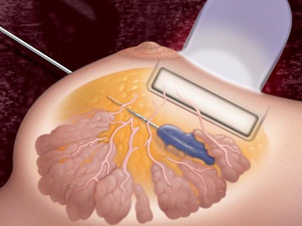 Sinh thiết được chỉ định để kết luận ung thư vú