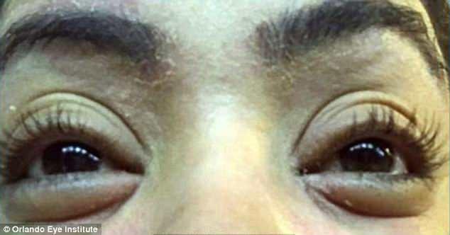 Nối mi, 12 phụ nữ bị bọ ve bám trên mí mắt - 2