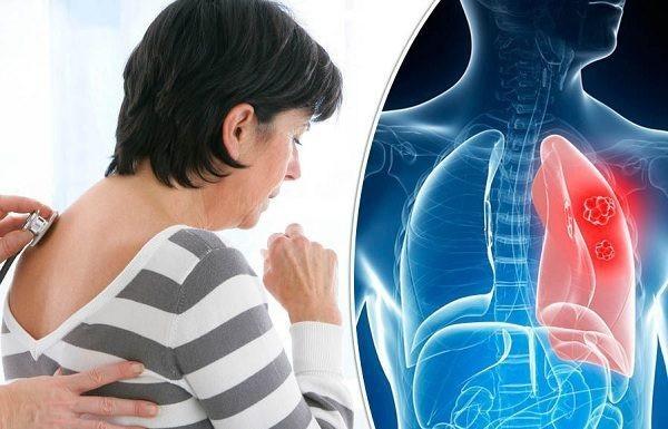 Khi bị ung thư phổi, ngoài ho kéo dài, người bệnh có thể gặp phải tình trạng đau tức ngực, ho ra máu…