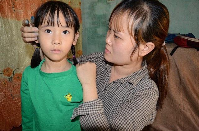 Liệu bé Hảo có cơ hội phát triển như những đứa trẻ bình thường khác nếu em được chữa trị đều đặn ?