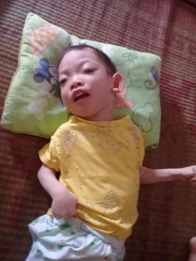 Con gái đầu là bé Phương Vy (6 tuổi) bị bại não.