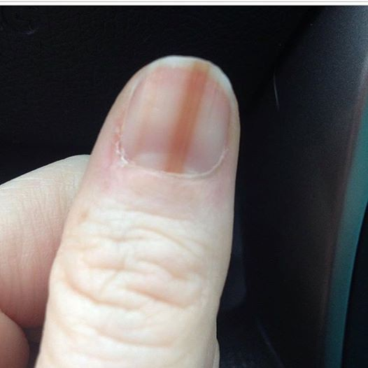 Nếu thấy dấu hiệu này ở móng tay, cần đi kiểm tra ung thư ngay - 1