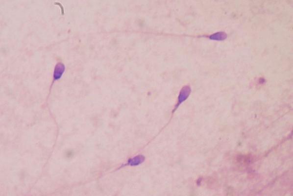 Phát hiện cấu trúc tinh trùng có thể góp phần gây vô sinh - 1