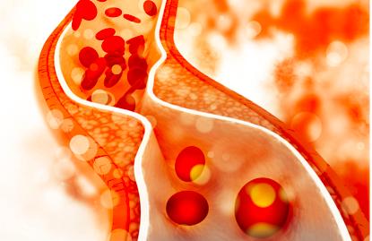 """Cholesterol LDL là """"hung thủ"""" thật sự gây ra các vấn đề về bệnh tim mạch"""