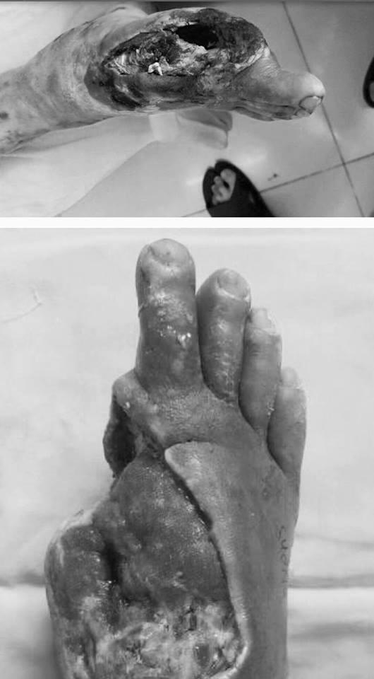 """Rùng mình hình ảnh bàn chân """"mục ruỗng"""" của bệnh nhân đái tháo đường - 1"""