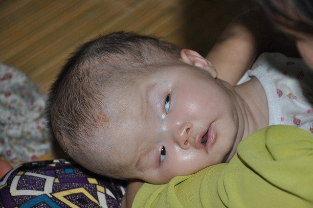 Bé Lệ Thủy bị úng não thủy và thoát vị màng não tủy, con liên tục phải trải qua các ca mổ.