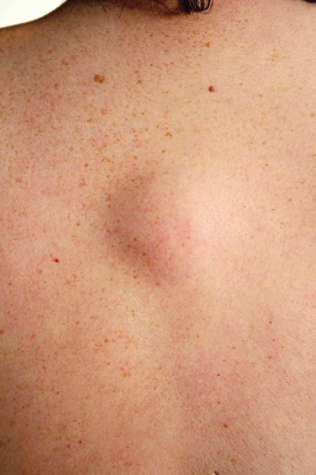 8 loại mụn trên da chớ có nặn - 8