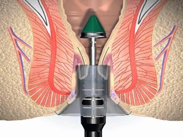 Với phương pháp cắt trĩ Longo người bệnh không có cảm giác đau đớn, sợ hãi như khi phẫu thuật bằng các phương pháp truyền thống khác.