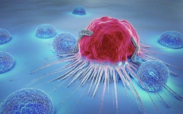 Ung thư là nguyên nhân gây tử vong cao thứ 2 trên toàn thế giới, chỉ sau các bệnh tim mạch. Chẩn đoán ung thư muộn chính là thách thức lớn nhất đối với điều trị và tỷ lệ sống còn. Bạn có biết rằng tuổi tác là yếu tố nguy cơ lớn nhất với bệnh ung thư? Hầu hết các trường hợp ung thư đều xảy ra ở người lớn tuổi, đặc biệt tỷ lệ cao nhất ở người trên 50 tuổi.
