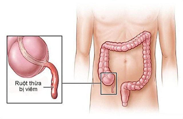 Vị trí ruột thừa trong hệ tiêu hóa (Ảnh minh họa)