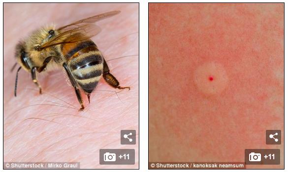 Ong và ong bắp cày có ngòi tiêm nọc độc vào da (trái) và để lại một vết thương màu đỏ có thể gây đỏ và phát ban trên da xung quanh (phải)