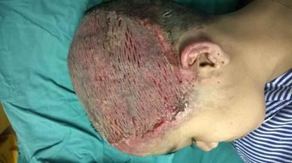 Sau ghép da tổn thương đã liền nhưng sẽ ảnh hưởng đến chức năng thẩm mỹ do không mọc được tóc. Ảnh: BS cung cấp.