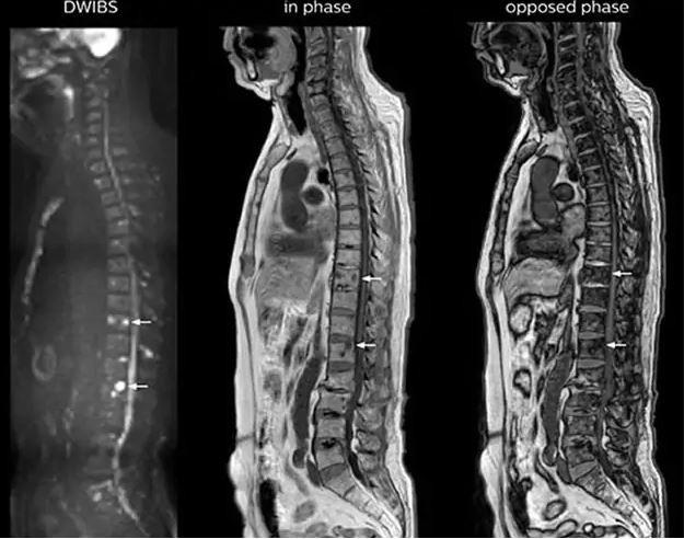 Hình ảnh chụp cộng hưởng từ trong tầm soát di căn cột sống