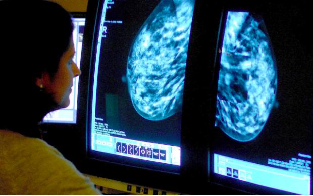 Nghiên cứu xem xét những người bị ung thư vú, tuyến tiền liệt, phổi hoặc ung thư đại trực tràng
